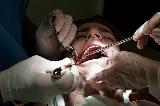A Boy Getting His Wisdom Teeth Pulled By A Dental Surgeon.