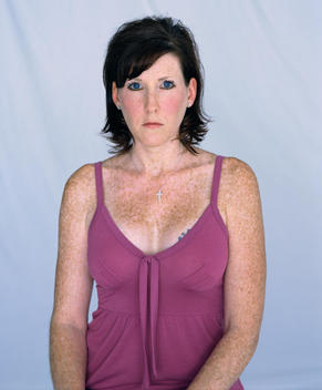 Portrait Of Woman With Freckled Skin.