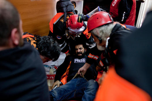 Press Photographer Sedat Suna from European Press Agency as EPA has been wounded on his leg by CS canister that shot by the Turkish police during the May Day (Labor Day)