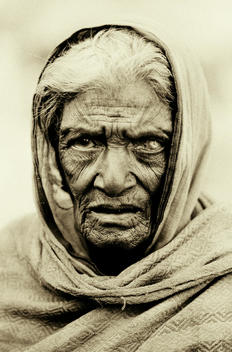 Old Woman With Eye Disease
