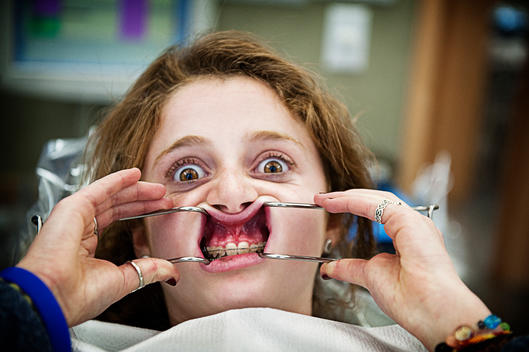 A Girl With A Mouth Spreader In An Orthodontist\'S Office.