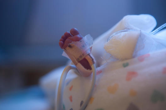 Foot of a premature baby in the neonatal intensive care unit
