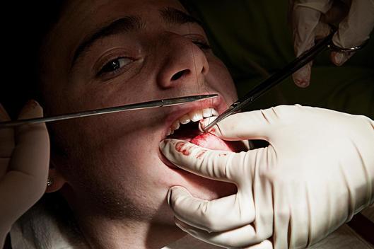 A Dental Surgeon Sewing A Boy\'S Lip Closed.