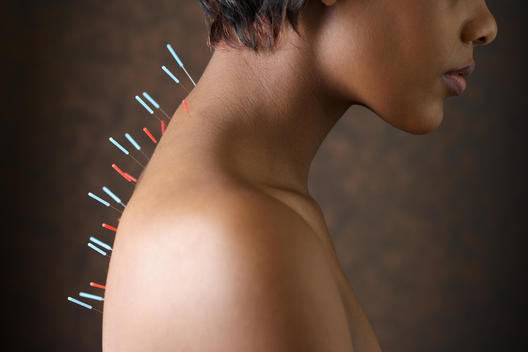 Acupuncture needles in African woman\'s back