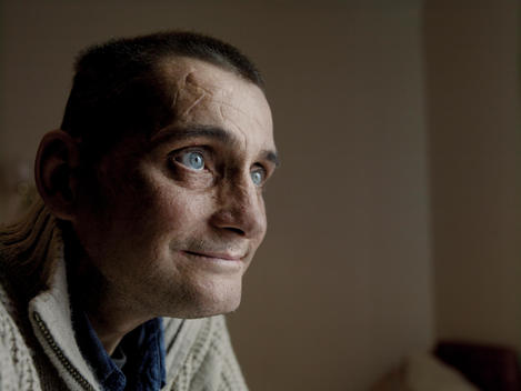 Portrait Of 40 - 45 Year Old Male Patient Of Caucasian Appearance