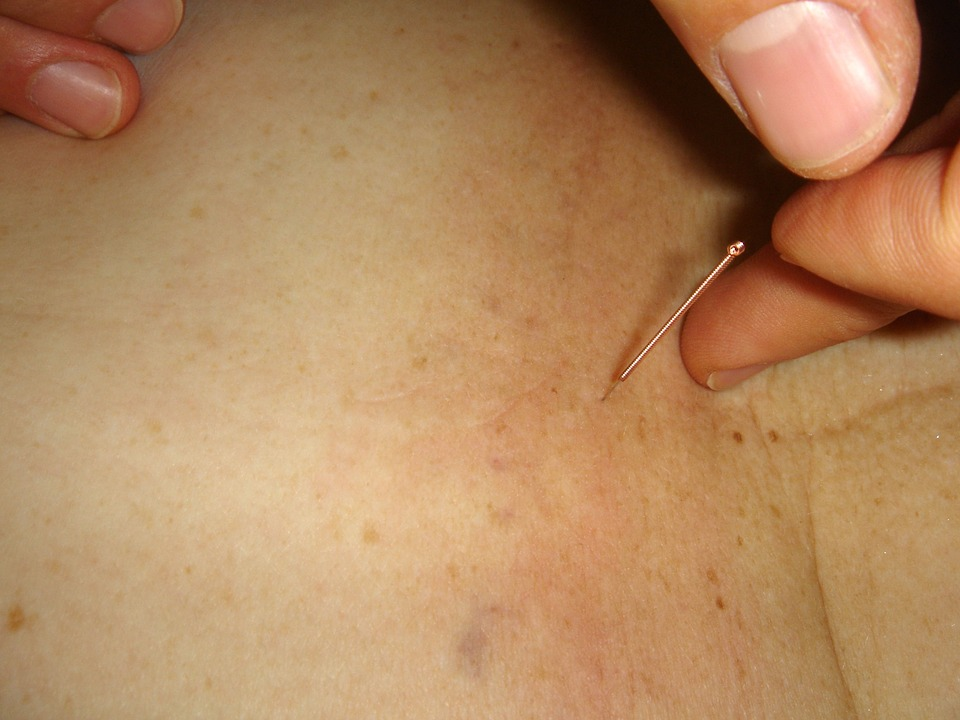 acupuncture, needle, acupuncture needle