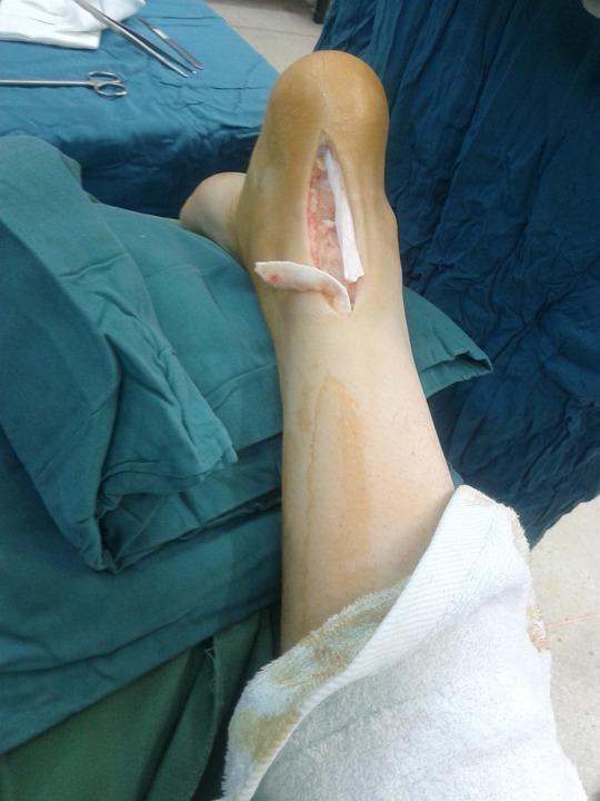 achilles, tendon, rupture