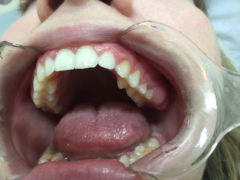 dentist, mouth, open mouth