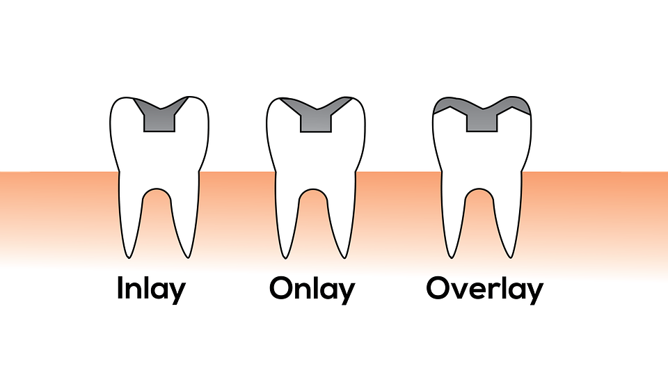 inlay illustration, overlay illustration, dentist