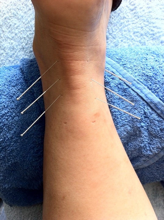 acupuncture, sport injury, sports massage
