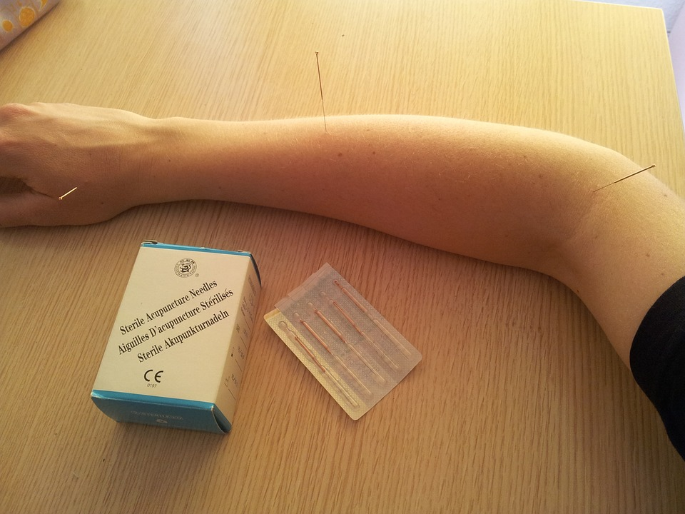 acupuncture, acupuncture needles, traditional chinese medicine