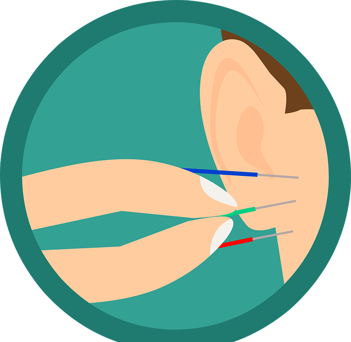 acupuncture, ear, needles